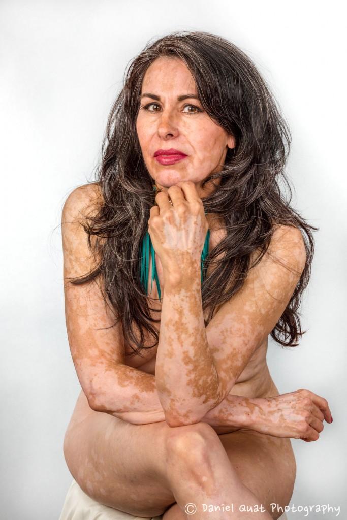 Beautiful Woman, Vitiligo skin condition, Healing Photo Shoot